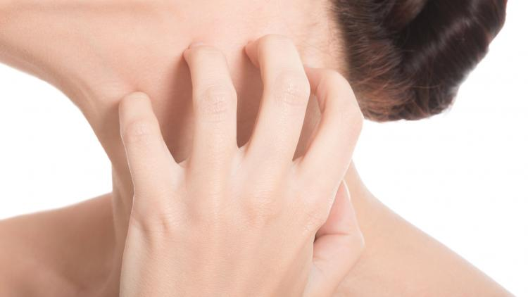 whats-eczema