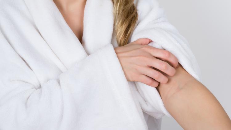 atopic-eczema