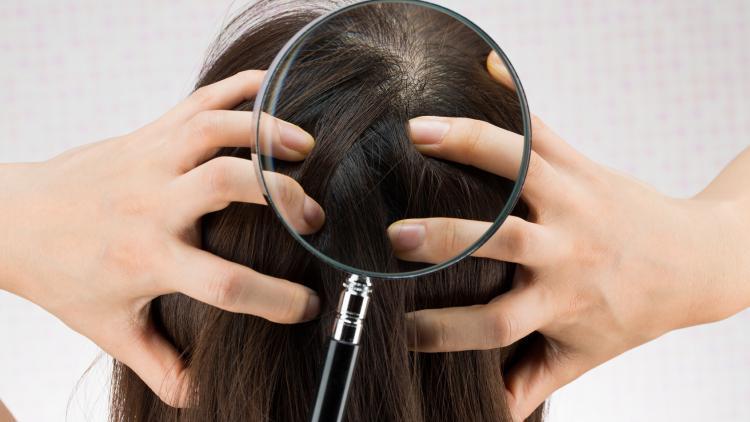 cuir-cheveulu-sensibles-demangeaisons-pourquoi