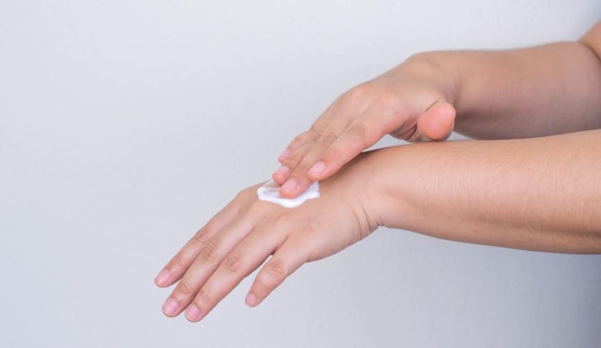 Trockene Hände durch Desinfektion