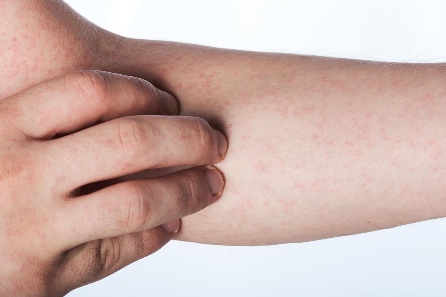 Neurodermitis Arm