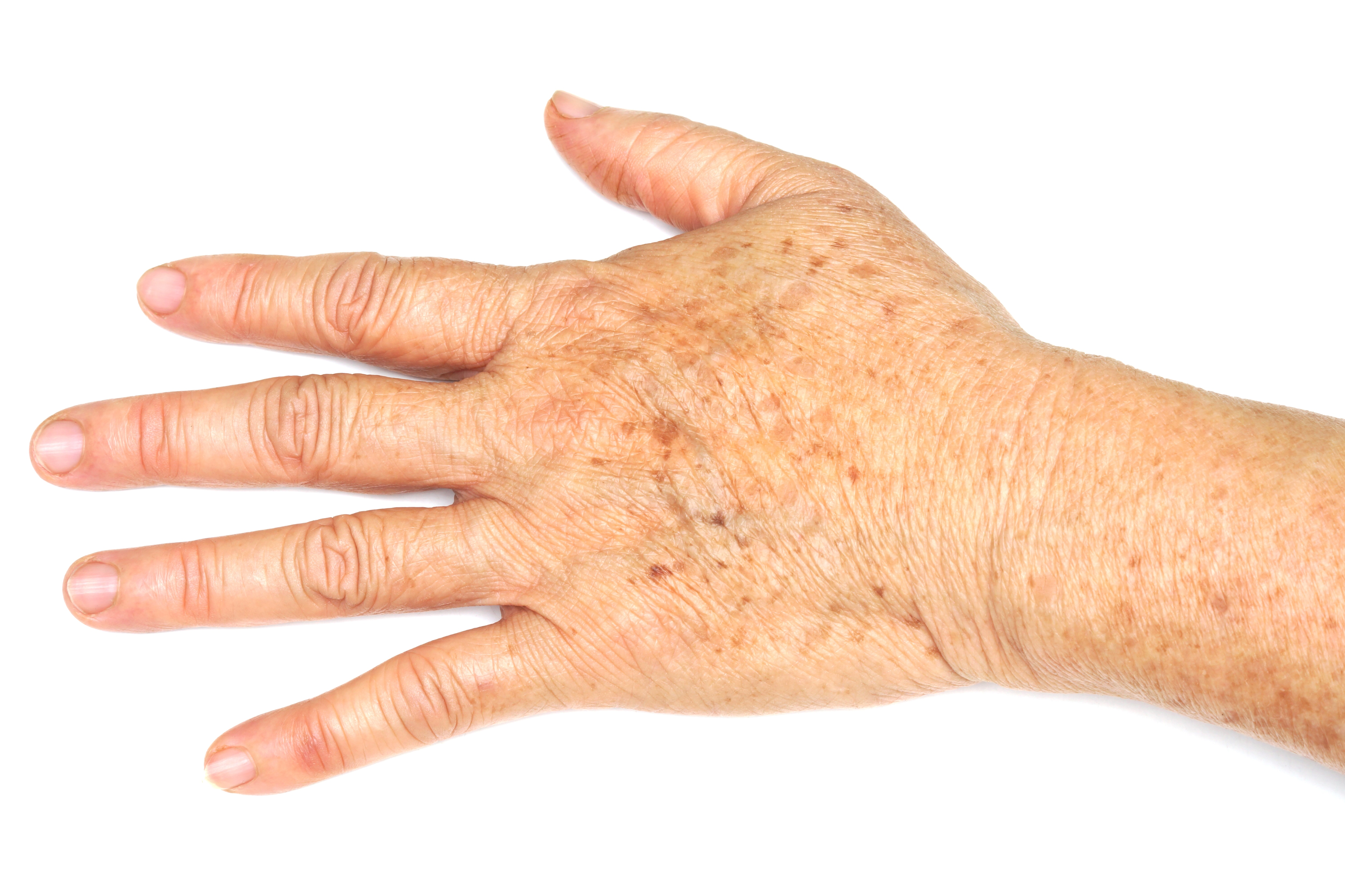 Altersflecken an den Händen