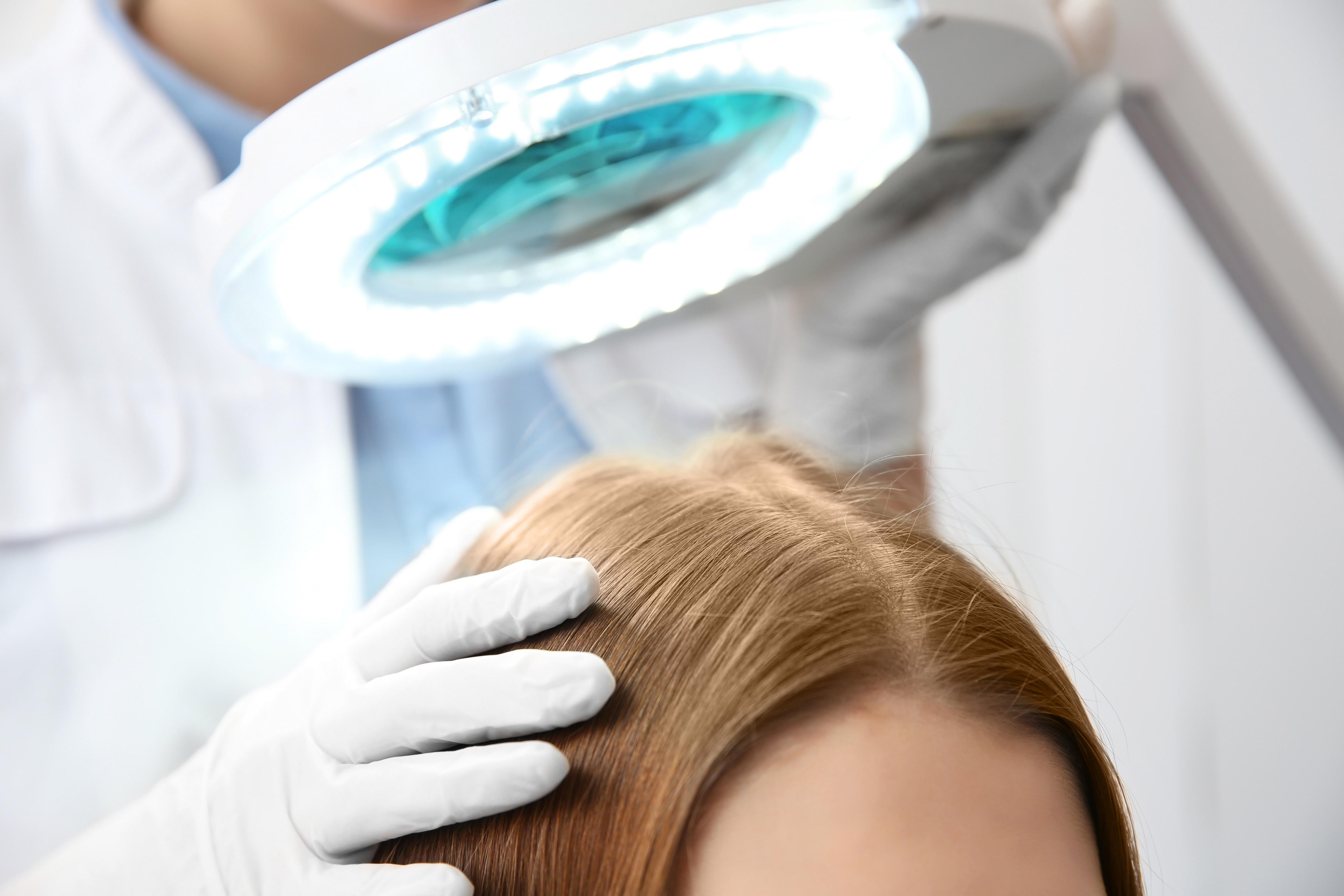 Kopfhaut Psoriasis