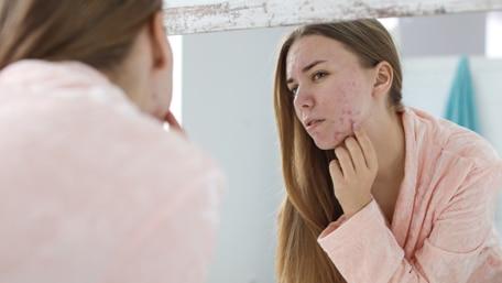 diagnosis_acne_type