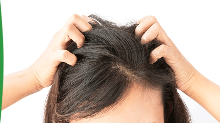 sensitive-scalp-all-the-facts-myths