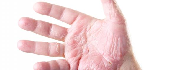 Why does eczema alter the skin's barrier?