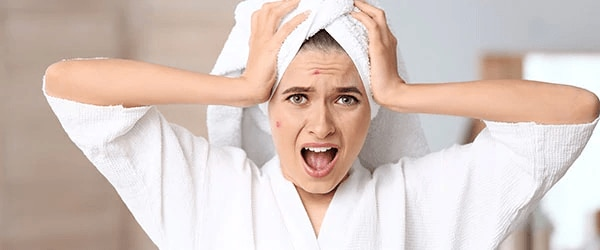 Stressi Hiustenlähtö