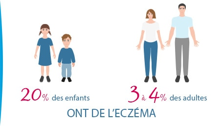 eczema-20-pourcent-enfants-4-pourcent-adultes