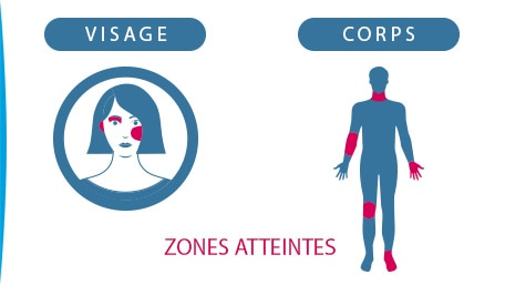 ILLUSTRATION-ZONES-DU-CORPS -VISAGE- CONCERNEES-PAR-ECZEMA