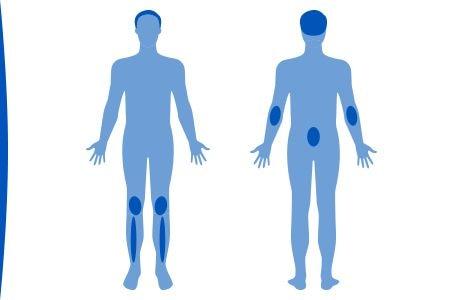 plaques-psoriasis