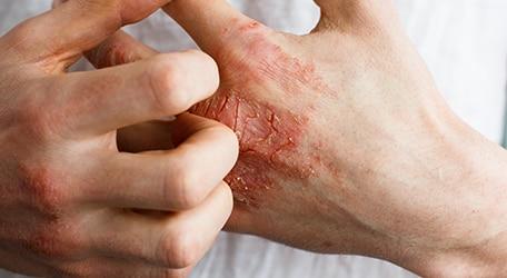 symptomes-crise-eczema