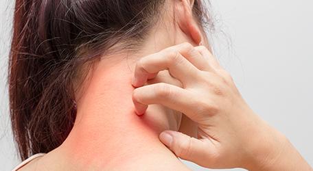 photo-eczema-cou