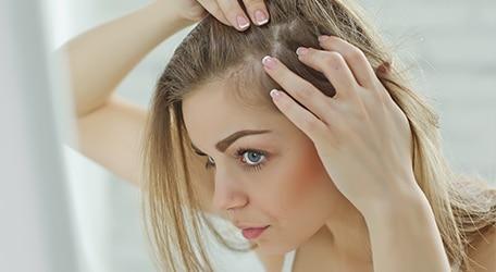 eczema-cheveux-cuir-chevelu
