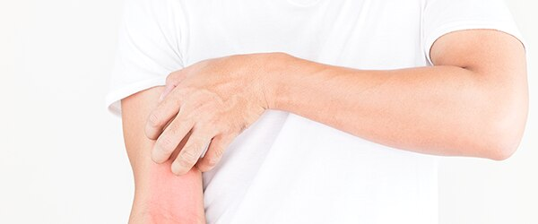 image-eczema-de-contact