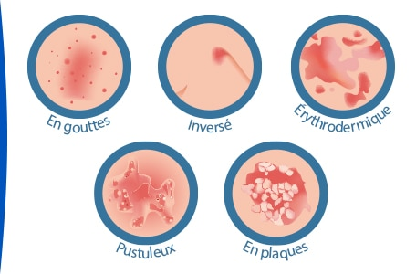 les-differents-types-psoriasis