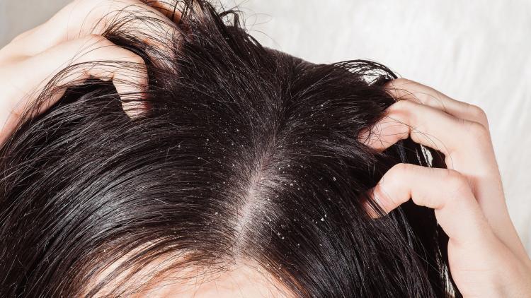 cuir-cheveulu-sensible-pellicules