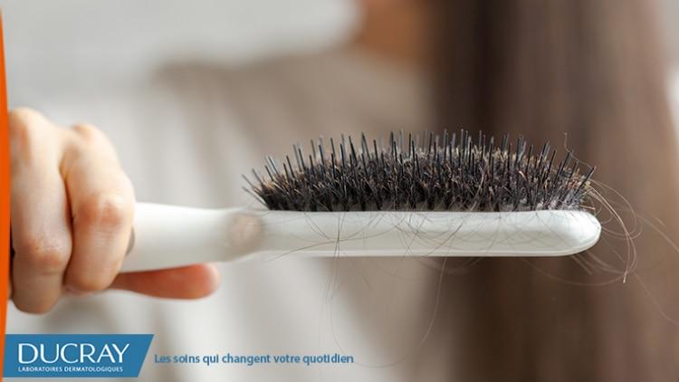 perte-de-cheveux-femmes-740x422.png