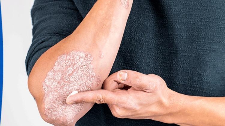 psoriasis-sur-coude-avec-squames-et-rougeurs