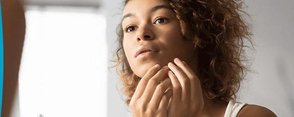 L'acné de la femme adulte, une pathologie à part entière