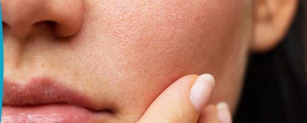 Que faire lorsqu'on a une peau mixte à grasse ?