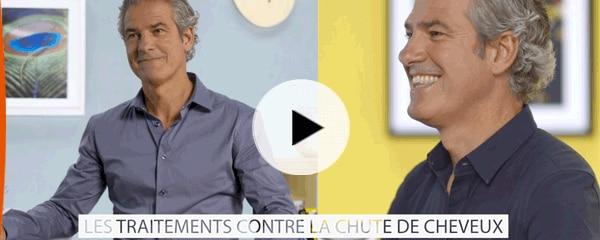 Vidéo #6 - Les traitements contre la chute de cheveux