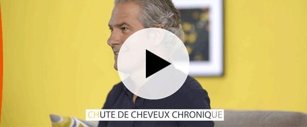 /video-sur-la-chute-de-cheveux-chronique