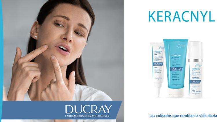 acne-mujeres-ducray-keracnyl
