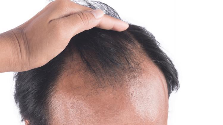chute-de-cheveux-effluvium-alopecie-difference