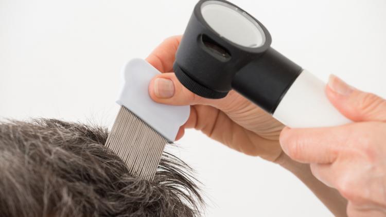 les-pellicules-font-tomber-les-cheveux